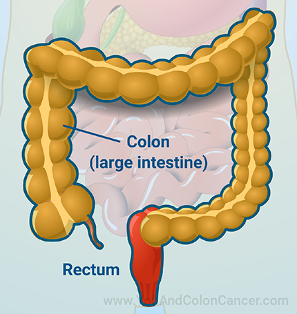 New to this resource? Follow our visual guide on colon cancer